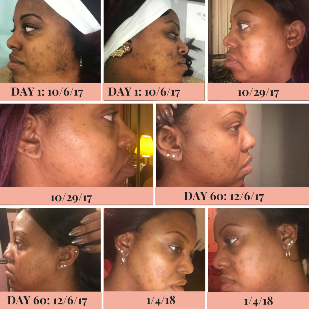 Skin Laundry Results: Before & After | TiaMarieJohnson.com